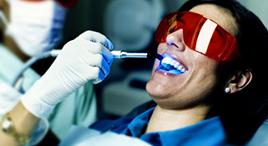 Laser-Dental-Cleaning