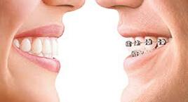 ortodoncia 00