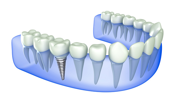 implantes_coslada